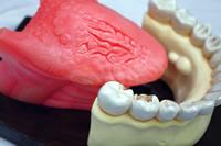 口腔がん模型